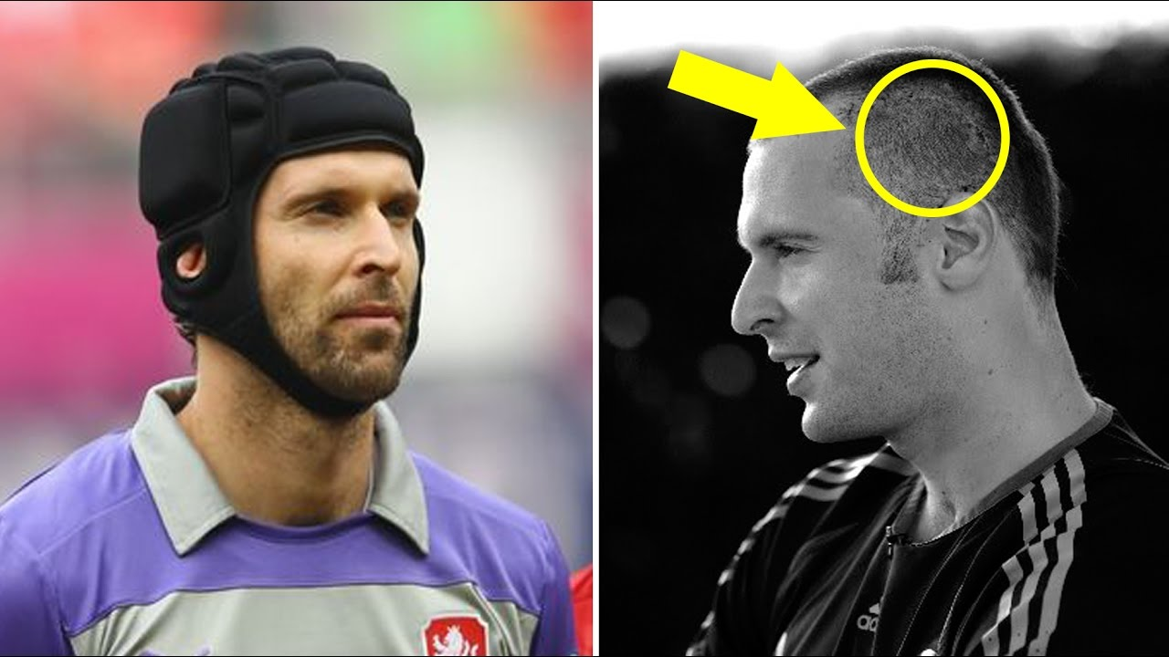 Petr Cech video accident and injury - This is why Petr Cech wears headgear!